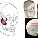 Phẫu thuật hạ gò má có đau không? Có nguy hiểm không?