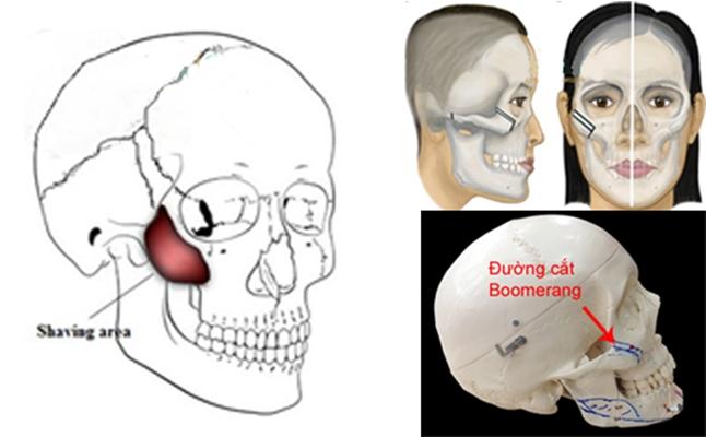Phẫu thuật hạ gò má có đau không 2