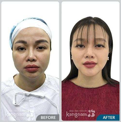 Phẫu thuật mặt dài ở Kangnam 1