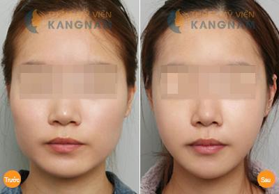 Kết quả phẫu thuật thẩm mỹ cằm tại thẩm mỹ viện Kangnam