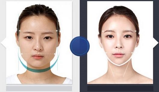Phẫu thuật thẩm mỹ cằm khắc phục triệt để khuôn mặt vuông góc cạnh