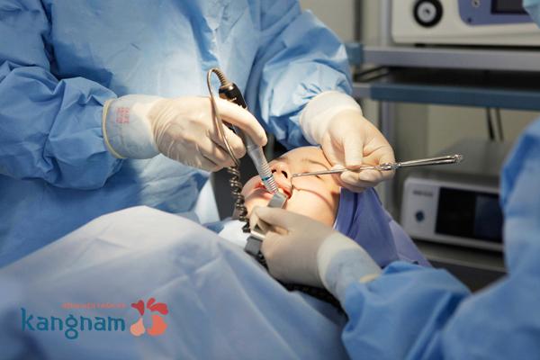 phẫu thuật thẩm mỹ gọt mặt