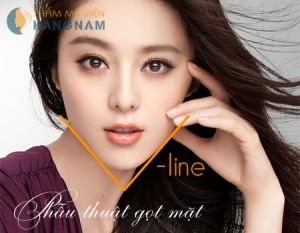 Gọt mặt V-line an toàn, hiệu quả tại thẩm mỹ viện Kangnam
