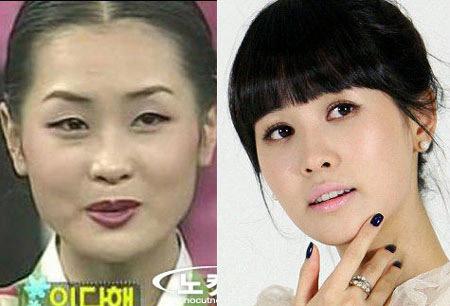 Lee Da Hae dep hon nho phau thuat got mat