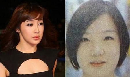 Park Bom (2NE1) cung thay doi dang ngac nhien
