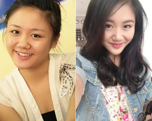 Phẫu thuật hàm mặt BÍ QUYẾT làm đẹp giấu kín của Sao Việt 2
