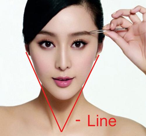 Phẫu thuật gọt mặt KANGNAM'S PERFECT VLINE