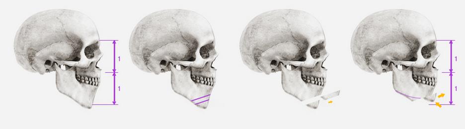thẩm mỹ khuôn mặt V-line 3D