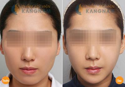 Thẩm mỹ khuôn mặt V-line 3D theo nhận định Dr.Choi Joong Ho anh 3