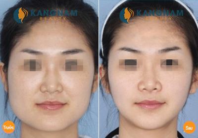 Kết quả thẩm mỹ khuôn mặt v line 3D