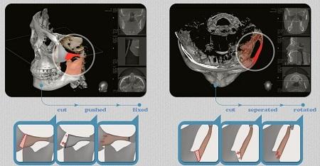 Quy trình phẫu thuật hạ gò má 2