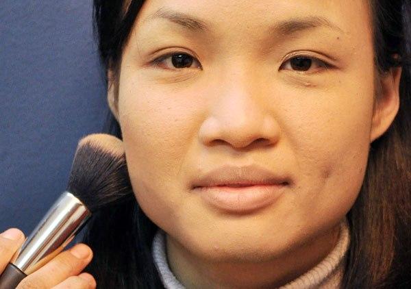 Phẫu thuật gọt mặt nội soi - Thẩm mỹ khuôn mặt toàn diện
