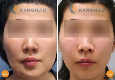 Phẫu thuật gọt mặt nội soi - Thẩm mỹ khuôn mặt toàn diện 6