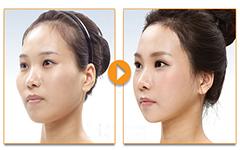 Video phẫu thuật khuôn mặt