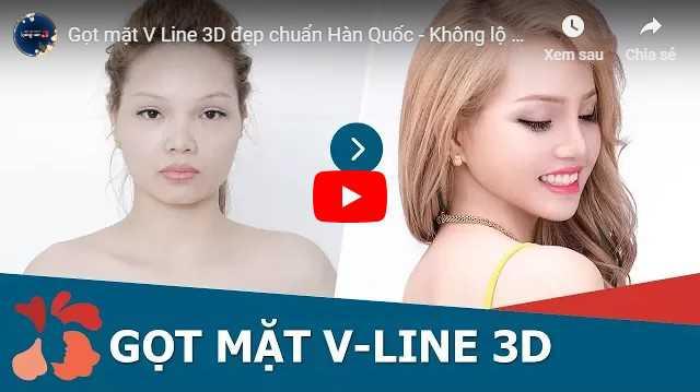 Video cách làm thon gọn khuôn mặt vuông tại Kangnam